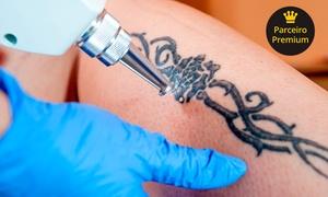 Evolution Estetic – Serra: 1, 2 ou 3 sessões de remoção de tatuagem (até 25x25 cm) com laser Nd:YAG na Evolution Estetic – Serra