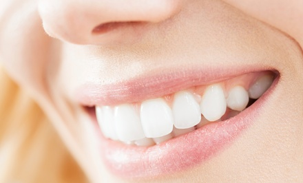 Full Dental Exam and Cleaning Plus Bleach Option at Quality Dental Care (Up to 91% Off)