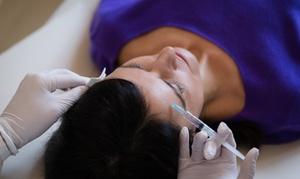 Naturheilpraxis Salvida bei Heilpraktikerin Nicole Bruhn: Faltenbehandlung mit 0,5 ml oder 1 ml Hyaluronsäure an 1 Zone bei Heilpraktikerin Nicole Bruhn (bis zu 43% sparen*)