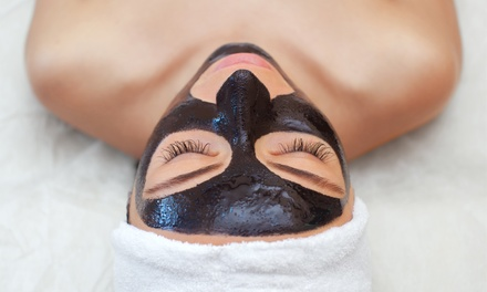 Carbon Laser Peel: One $75, Two $145 or Three Sessions $215 at Star Medispa, 2 Locations Up to $840 Value