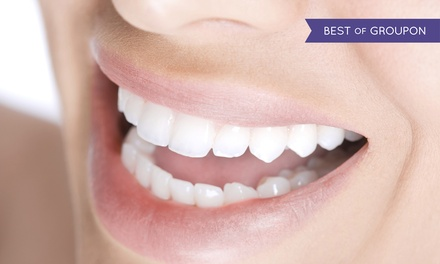Clear Braces: One or Two Arches with Optional Teeth Whitening and Contouring at Align Brighten Contour (Up to 66% Off)