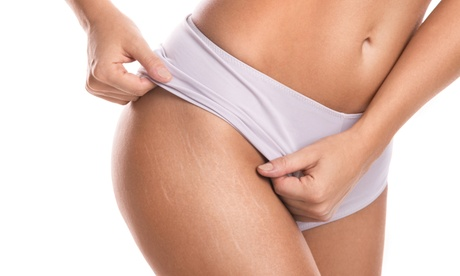 3 Laser-Lipo, Radio-Frequency Skin-Tightening, or Ulrasonic Cavitation Treatments  (Up to 58% Off)