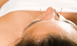 Victoria Ryan, L.Ac.: An Acupuncture Treatment at Victoria Ryan, L.Ac. (47% Off)
