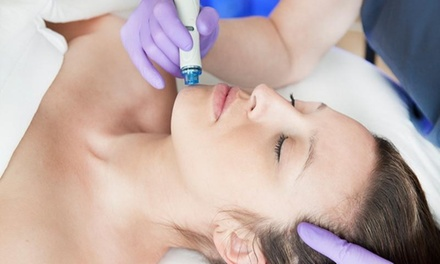 Deluxe Facial Package $49 + Photorejuvenation $89 at Dermlab Up to $460 Value