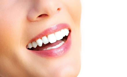 $100 for a 60-Minute Organic Teeth-Whitening Treatment from Davinci Las Vegas Teeth Whitening (75% Off)