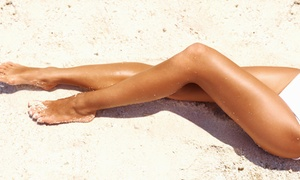 Mission Oaks Laser & Spa: Two or Four Laser Spider-Vein Removal Treatments at Mission Oaks Laser & Spa (Up to 70% Off)