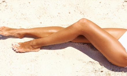 Two or Four Laser Spider-Vein Removal Treatments at Mission Oaks Laser & Spa (Up to 73% Off)