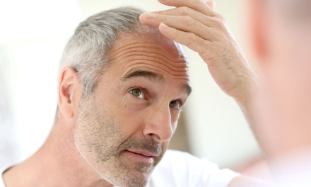 Paga 79€ o 99€ por un descuento de hasta 2500€ en un trasplante capilar con técnica FUSS o FUE (1200 UF) en Hair Qlinic