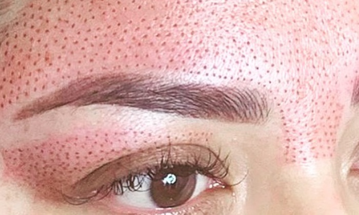 Fibroblast Skin Tightening - Cosmetic Scalp & Skin Solutions | Groupon