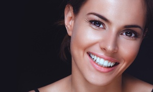 Orchid Family Dental: $59 for Dental Cleaning, X-Rays, and Exam at Orchid Family Dental ($375 Value)