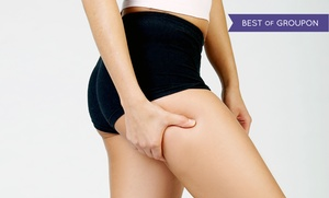 Great Neck Medical Spa: One, Three, or Six SmoothShapes Cellulite-Reduction Treatments at Great Neck Medical Spa (Up to 67% Off)