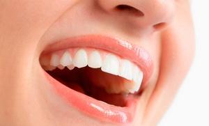Blanqueamiento dental led y limpieza bucal por 59,90 € y con kit blanqueador para casa por 89,90 €