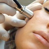 Up to 49% Off Microdermabrasion Treatments at Lmar Healing