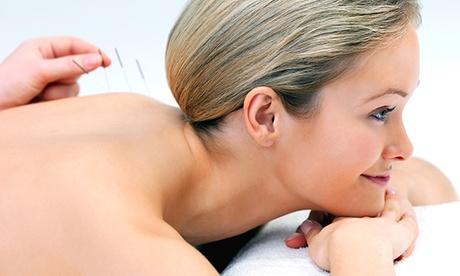 90 Minuten Akupunktur mit Anamnese, optional plus Folge-Sitzung, bei Valerie Marter Heilpraktikerin