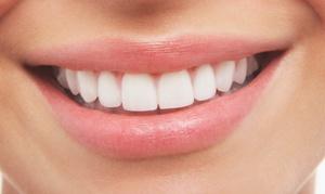 Al Mariya Polyclinic: Teeth Cleaning, Scale and Polish with Optional LED Teeth Whitening at Al Mariya Polyclinic*