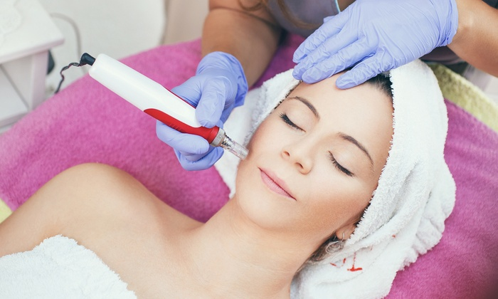 Vega Clinic - London: Up to Five Microdermabrasion Facial Sessions at Vega Clinic