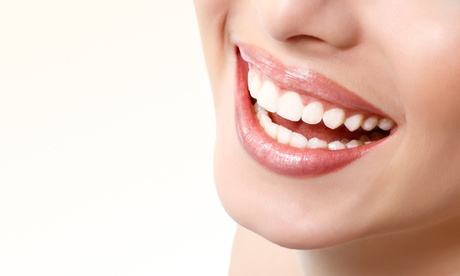 Limpieza bucal con hasta 6 empastes desde 19,90 € en Clínica Dental Sainz de Baranda 39 Oferta en Groupon
