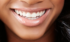 Deerfield Family & Cosmetic Dentistry: Dental Cleaning, X-Ray, and Exam for 1, 2, or 4 People at Deerfield Family & Cosmetic Dentistry (Up to 91% Off)