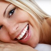 Up to 80% Off Laser Teeth Whitening