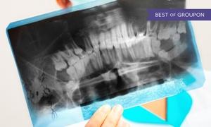 Smile Dent: Pantomograficzne zdjęcie zębów od 29,99 zł w Smile Dent