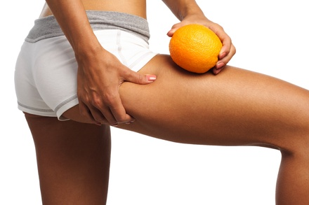 Three or Six Cellulite and Buttock Lift Treatments from Jamie Dial at TranZitions Hair Salon (Up to 75% Off)