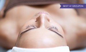 MD Body & Med Spa: Microdermabrasion with Optional Light Peel at MD Body & Med Spa (Up to 64%Off). Four Options Available.