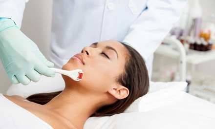 Microneedling Session