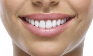 1, 2 o 4 sesiones de limpieza bucal con ultrasonidos desde 9,90 €