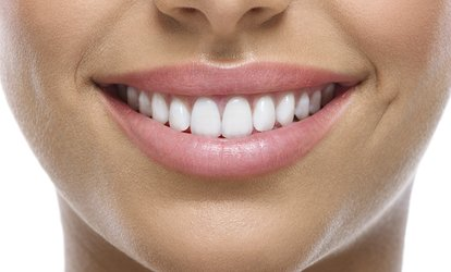 $79 for a Dental Exam Package with X-Rays, or $169 to Add One Filling or Teeth Whitening Kit at Central Brisbane Dental