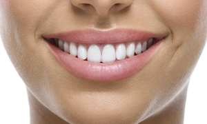 Pearly Whites Springfield: One or Two 60-Minute In-Office Teeth-Whitening Sessions at Pearly Whites Express (Up to 86% Off)