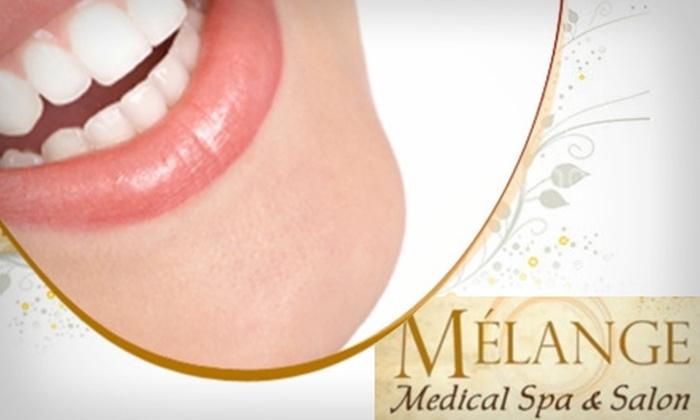 Melange Medical Spa & Salon - Belcaro: $99 for an In-Chair Teeth Whitening at Melange Medical Spa & Salon ($250 Value)