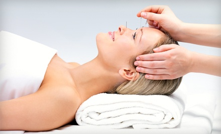 Acupuncture Treatment (a $150 value) - Way of Wellness in San Jose