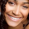 Up to 76% Off Teeth Whitening & Exam in Northford