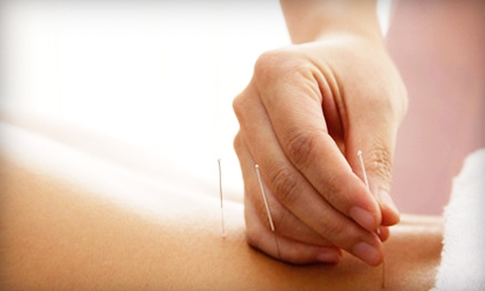 Blue Ridge Acupuncture Clinic - Asheville: One or Three Acupuncture Sessions at Blue Ridge Acupuncture Clinic (Up to 79% Off)