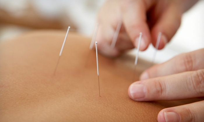 Timothy L Lloyd DC, FIAMA, CSCS - Beverly-Harvard: Initial Exam and One or Two Acupuncture Treatments from Timothy L Lloyd DC, FIAMA, CSCS (Up to 60% Off)