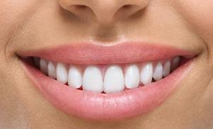 Limpieza bucal con ultrasonidos, pulido y fluorización por 9,90 € o con blanqueamiento dental led por 49,90 €