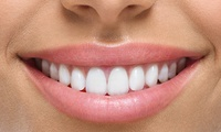 Enlighten Teeth Whitening with Dental Check-Up at Aylesbury Dental Care (22% Off)