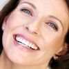 Limpieza profunda de encías e higiene bucal, -79%