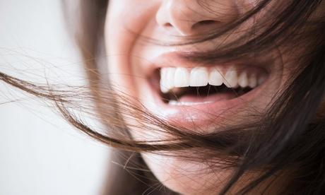 Limpieza bucal con pulido, revisión y fluorización con opción a blanqueamiento led desde 12,95€ en Clínica Dental Kident