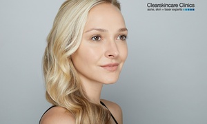 Clear Skincare Clinics: $99 for an Skin Rejuvenation IPL Package at Clear Skincare Clinics, 41 Locations (Up to $224 Value)