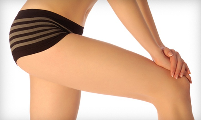 Plastic Surgery Affiliates - Watkins Park: $599 for Eight SmoothShapes Cellulite Treatments at Plastic Surgery Affiliates (Up to $1,600 Value)