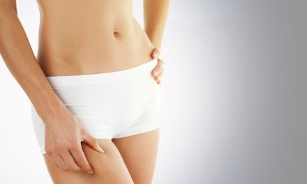 $799 for 12 Zerona Laser Body-Contouring Treatments at HealthBridge ($3,495 Value)
