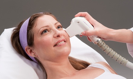 Radio Frequency Skin Tightening: 3 ($89) or 5 Sessions ($159) on Two Areas at Lotus Laser Clinic (Up to $1,116 Value)