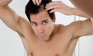 Renaissance Hair Loss Solutions: $999 for Four-Month Hair Restoration Treatment at Renaissance Hair Loss Solutions, Mt. Pleasant (Up to $2,650 Value)