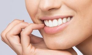 1 o 2 sesiones de blanqueamiento led y limpieza dental desde 59 €