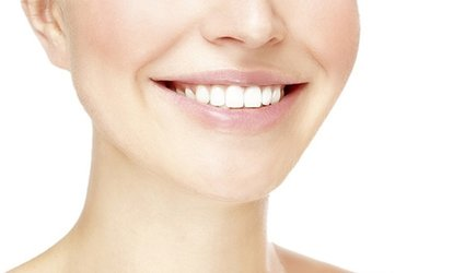 Teeth Whitening Including Impression, Trays and Gel at Smile More Solihull (66% Off)