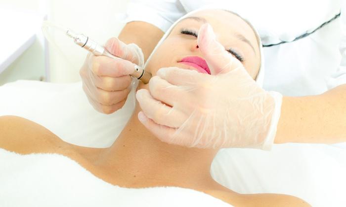 Wellness & Rejuvenation Skincare - Wellness & Rejuvenation Skincare: One or Three Microdermabrasion Treatments With Mini Facials at Wellness & Rejuvenation Skincare (Up to 69% Off)