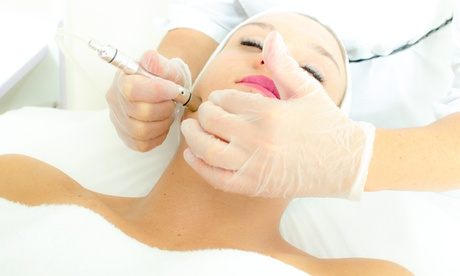 One or Three Microdermabrasions on Face or Back with Enzyme Masks at Four Points Aesthetics (Up to 64% Off)