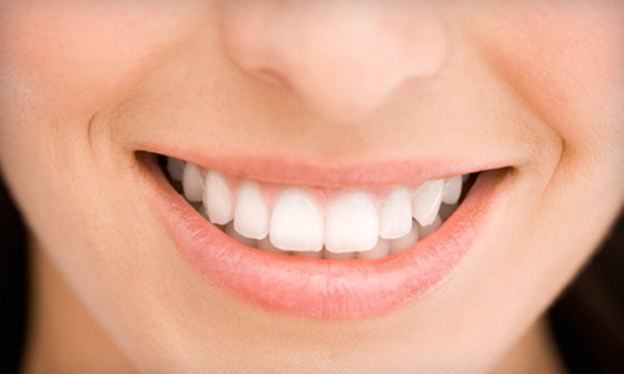 Harvey F. Perlow, DDS - Upper East Side: $299 for Dental Bonding on One Tooth from Harvey F. Perlow, DDS ($1,000 Value)