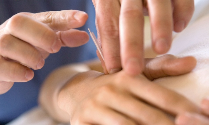 Chiropractic Health Group - Hickory Hills: $49 for an Acupuncture Treatment at Chiropractic Health Group ($175 Value)